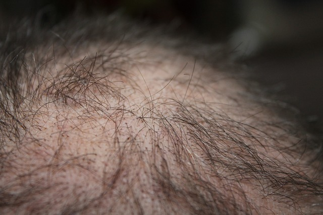 רשלנות רפואית בהשתלת שיער